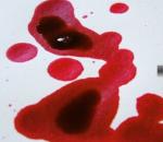 Manchas de sangue sobre um tecido branco.